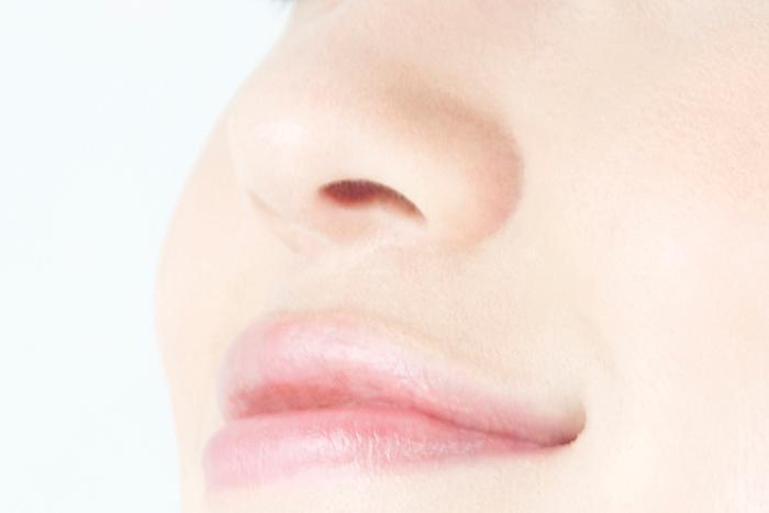 ヒアルロン酸隆鼻術