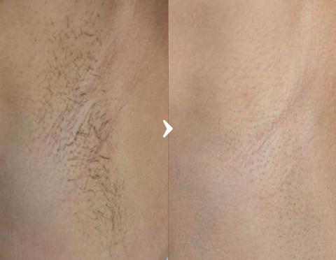 医療レーザー脱毛の症例写真